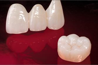Dental Crowns Treatment