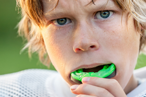 Protective Mouth Guards