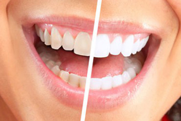 Bleaching and whitening Treatment