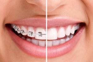 dental-braces[1]