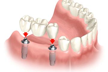 Dental Bridges Treatment